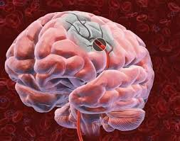 """""""Time is brain"""" in stroke  The earlier the treatment, the better the recovery"""